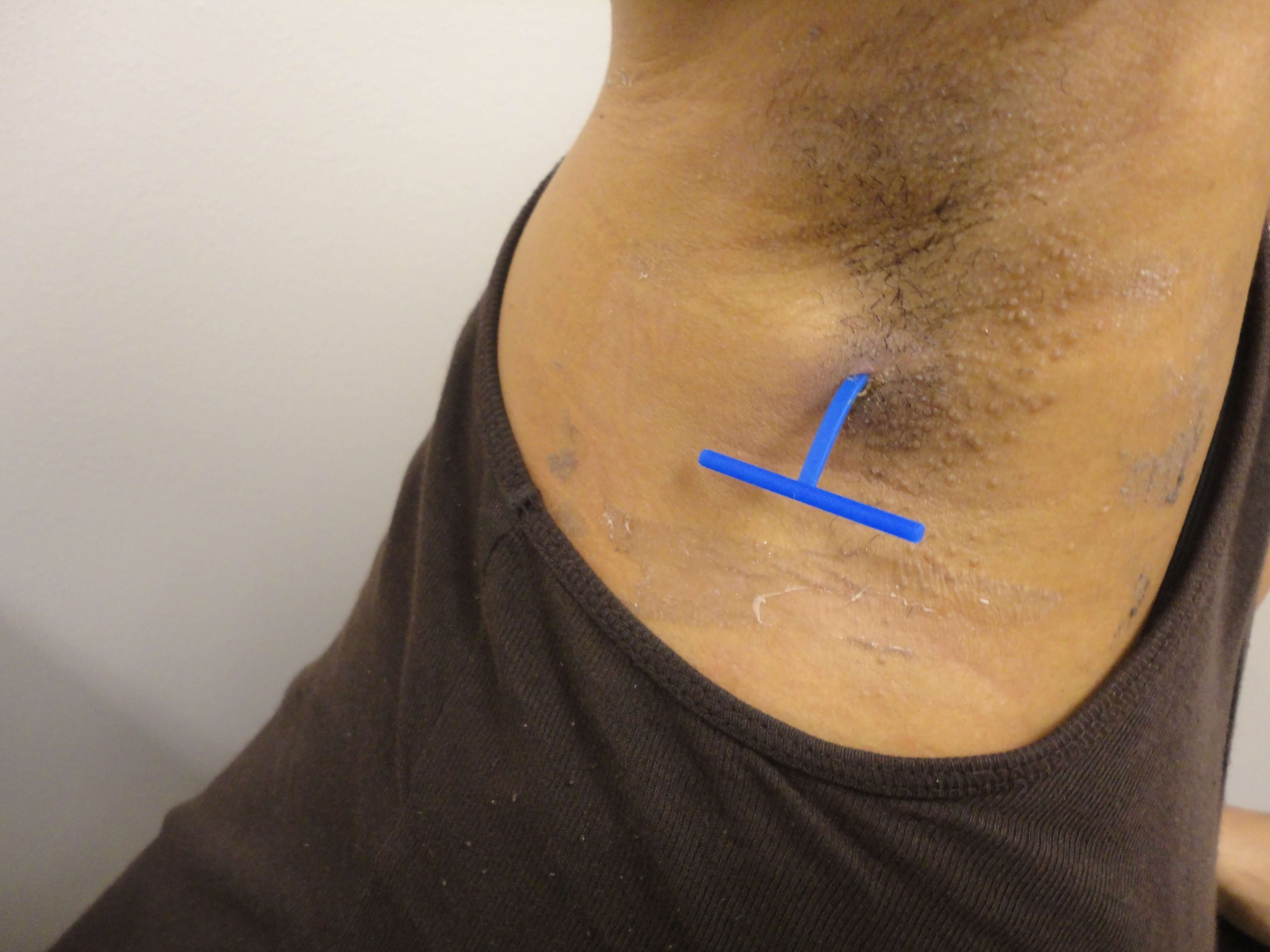 Derma-Stent being used with one incision on the abscess.