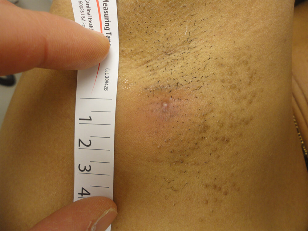 Derma-Stent scarring shown after treatment.