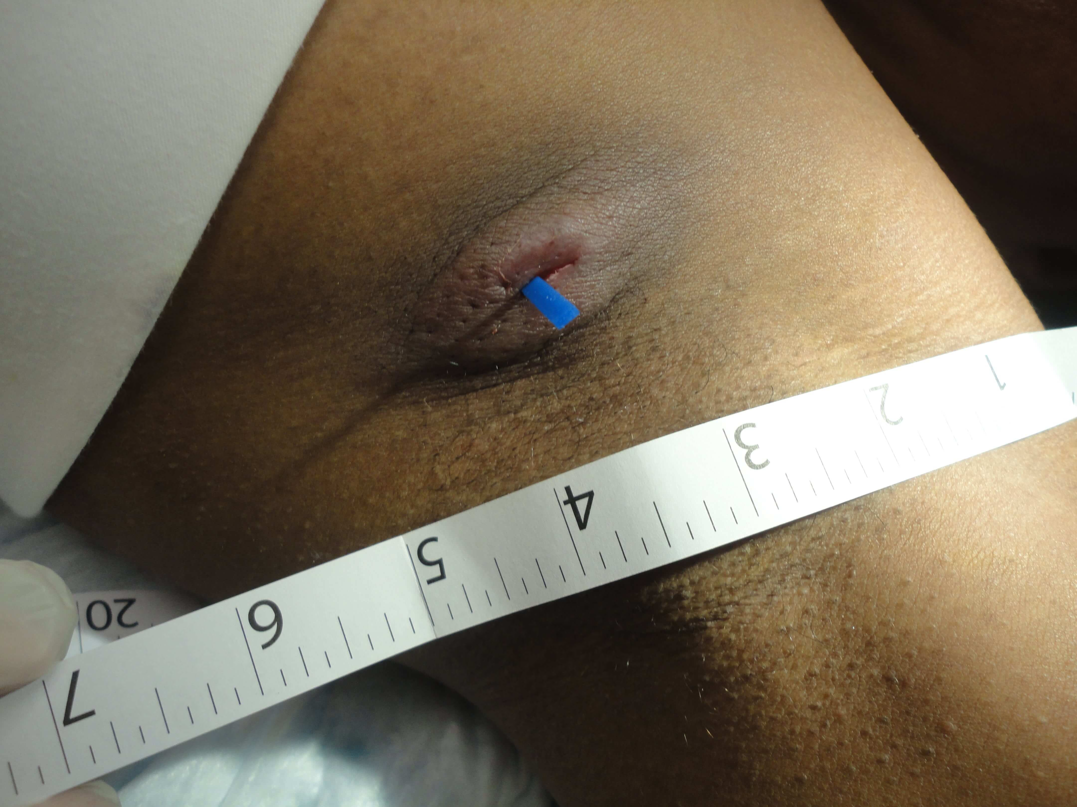 Derma-Stent being used with one incision on the abscess underarm.